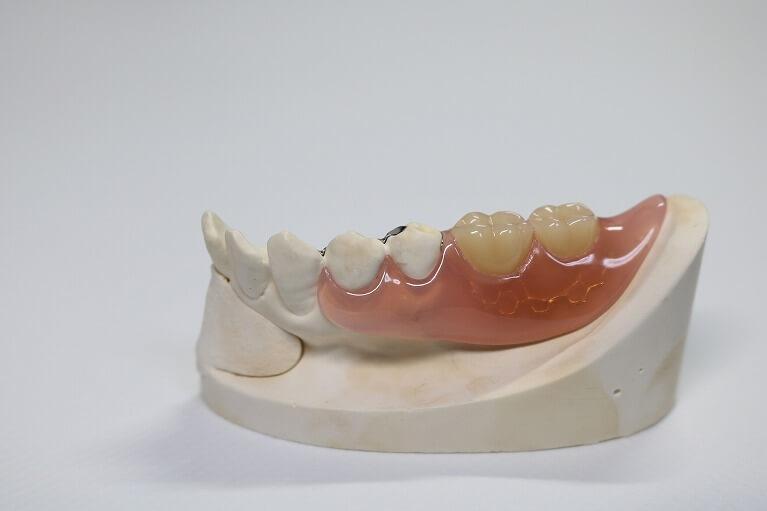 保険の入れ歯レジン