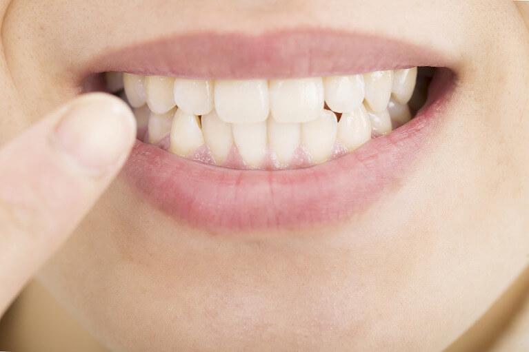 咬み合わせが悪いと体調不良にもつながる可能性があります。